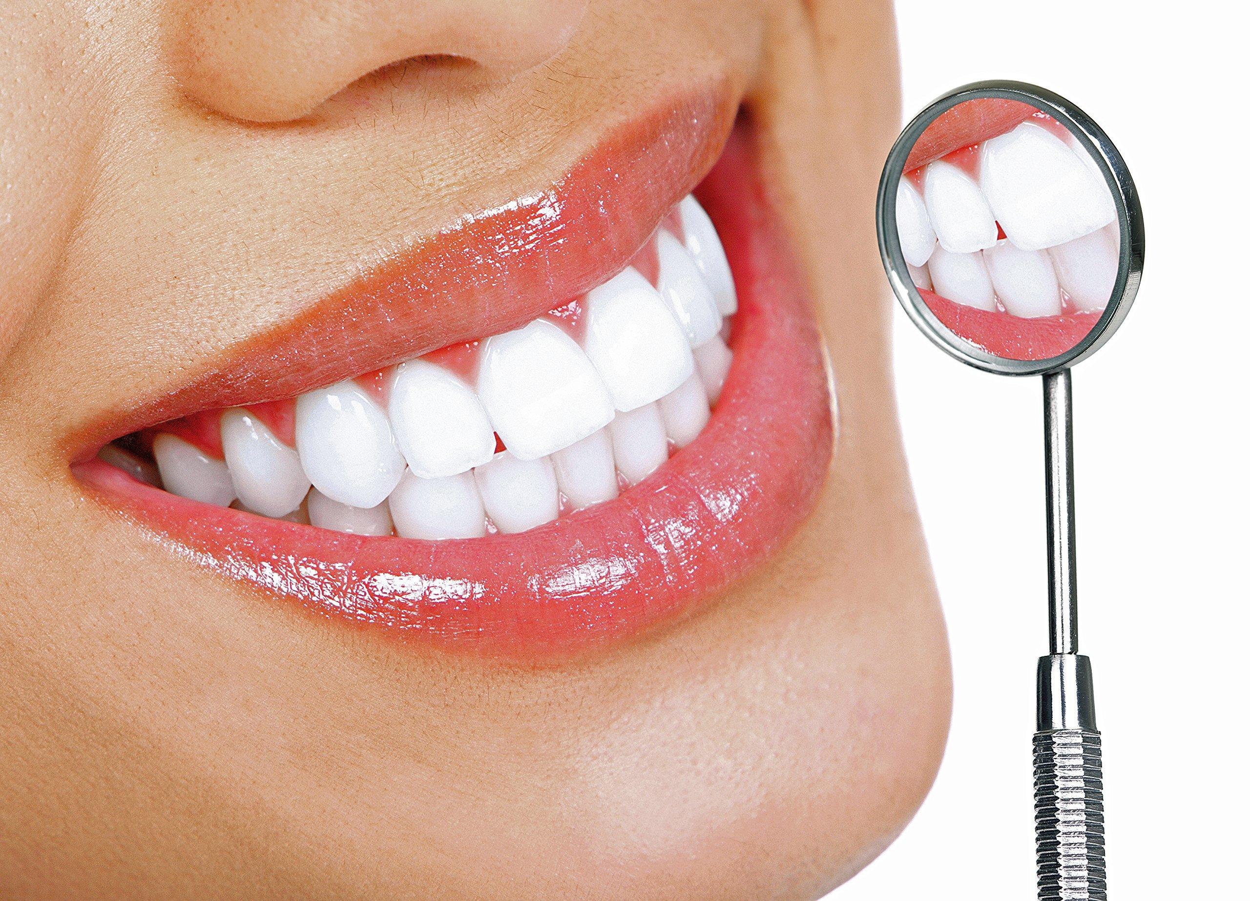 Λεύκανση των δοντιών