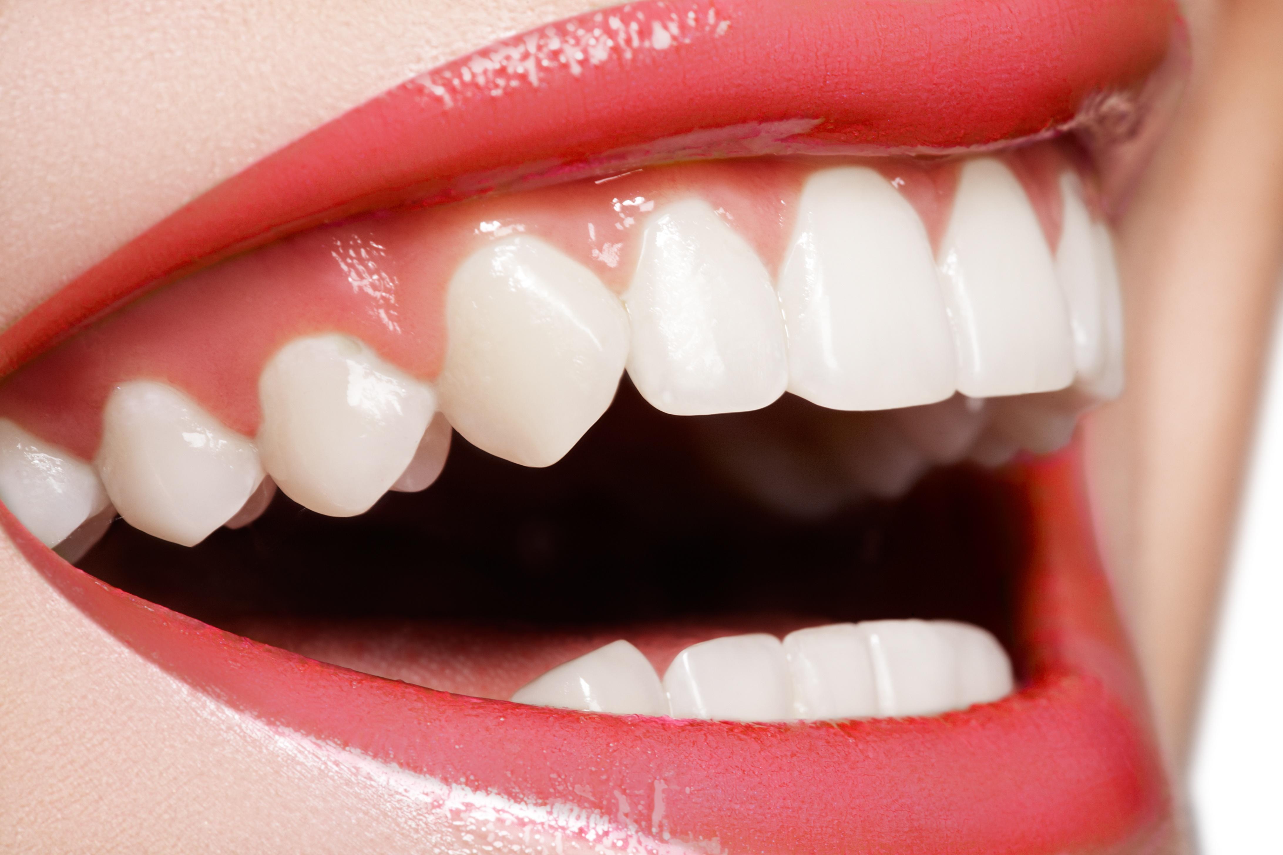 Αισθητική οδοντιατρική στη Γλυφάδα