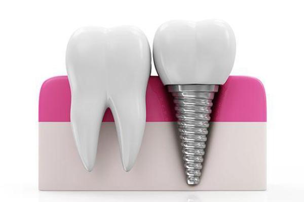 γλυφάδα εμφυτεύματα δοντιών