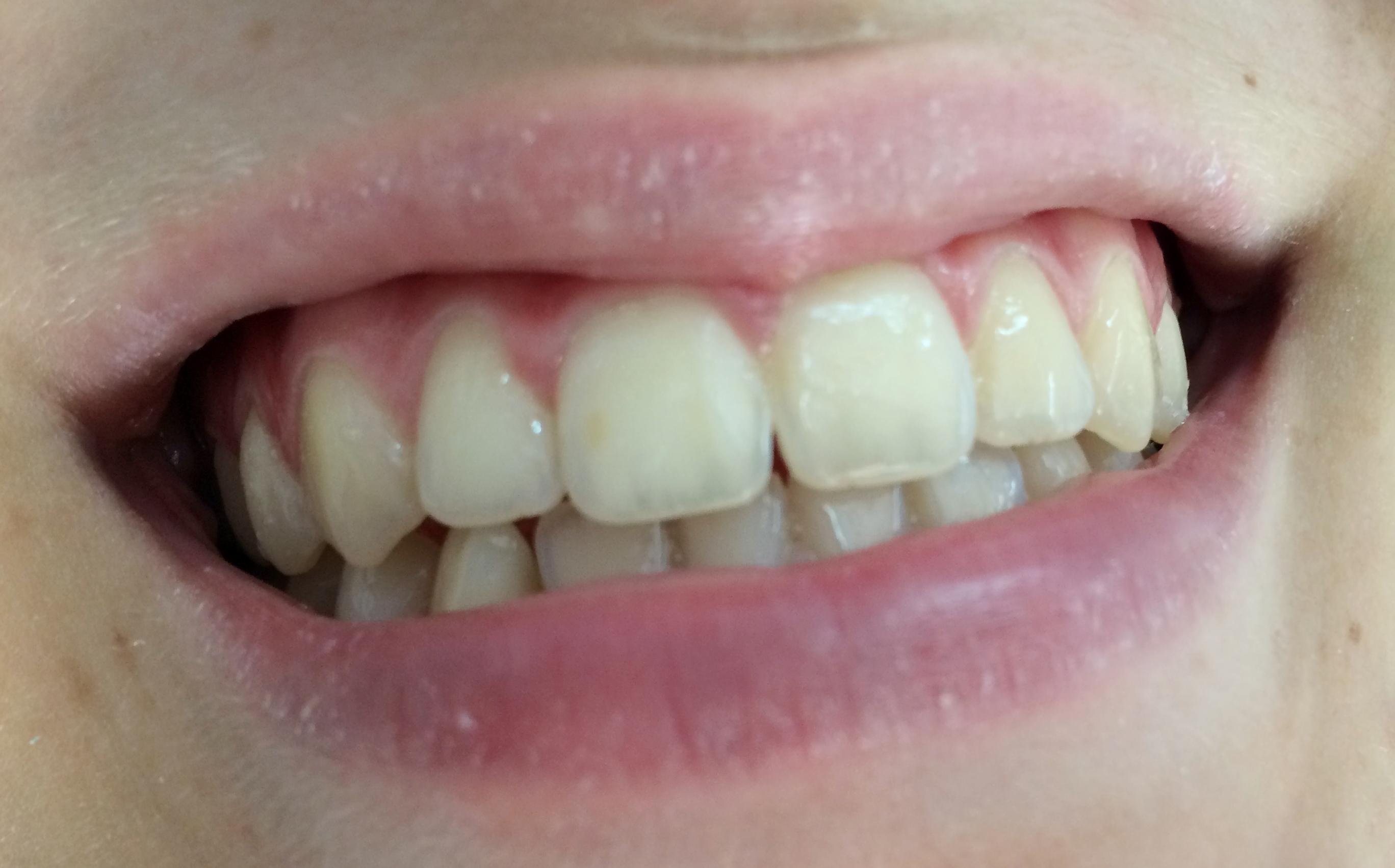 Επιδιόρθωση και lifting δοντιών