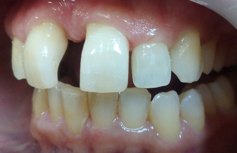 bonding δοντιών