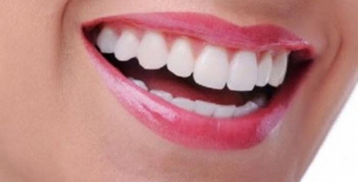 λίφτινγκ δοντιών