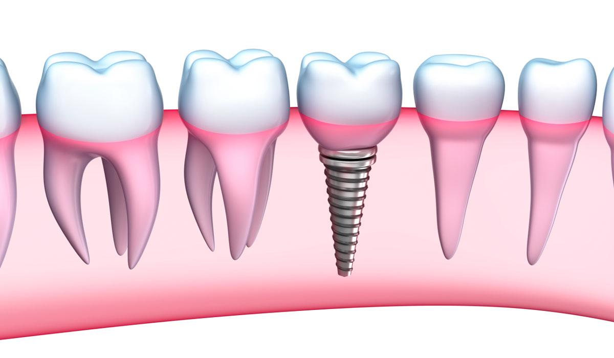 Οδοντιατρικά εμφυτεύματα για να χαμογελάτε άφοβα