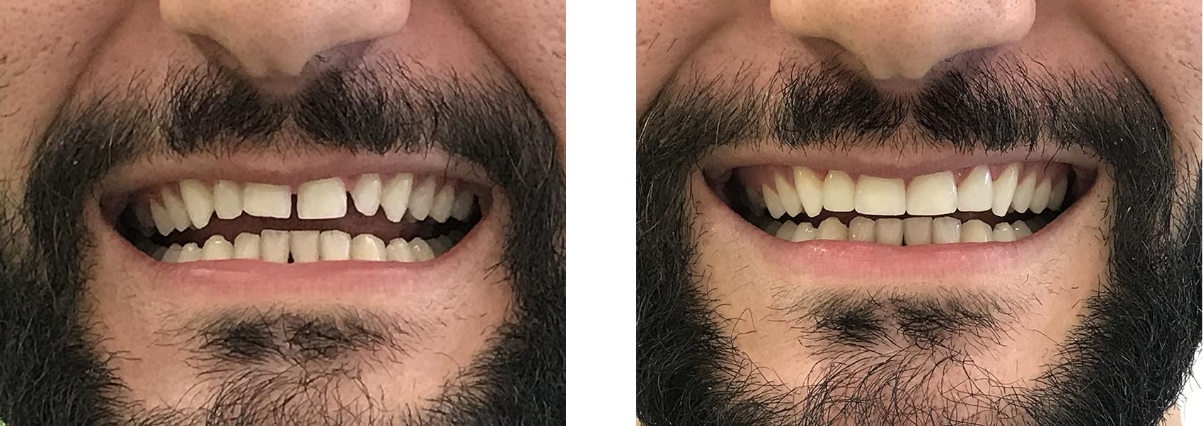 bonding δοντιών 1η εικόνα