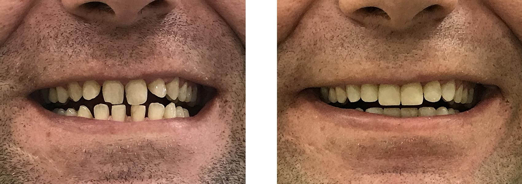 bonding δοντιών 2η εικόνα