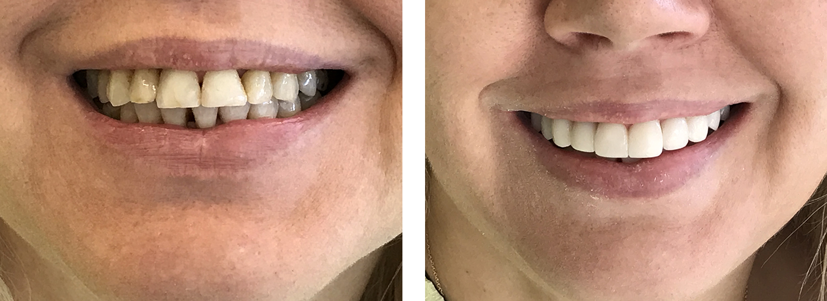 bonding δοντιών 4η εικόνα