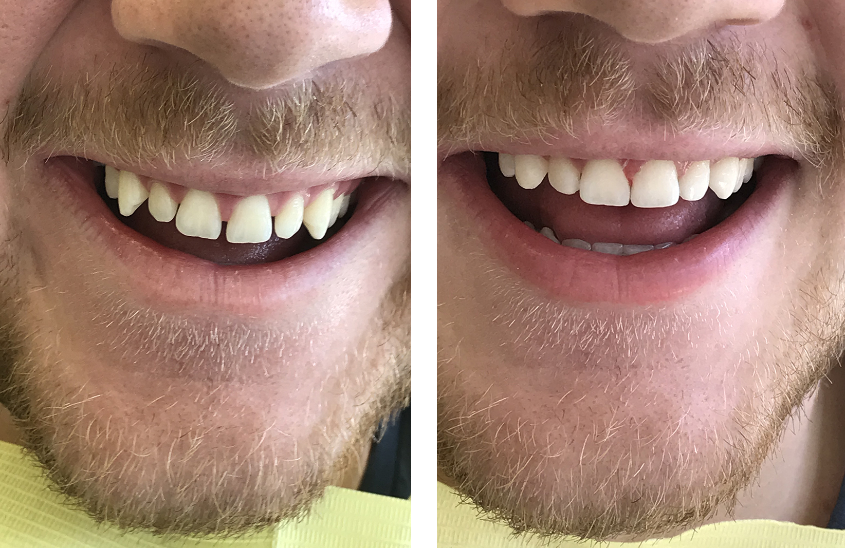 bonding δοντιών 5η εικόνα