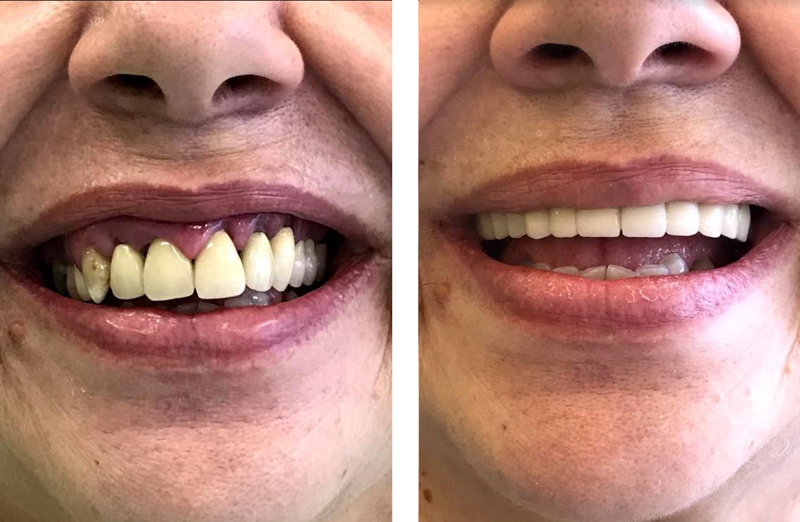 εμφυτεύματα δοντιών 1η εικόνα