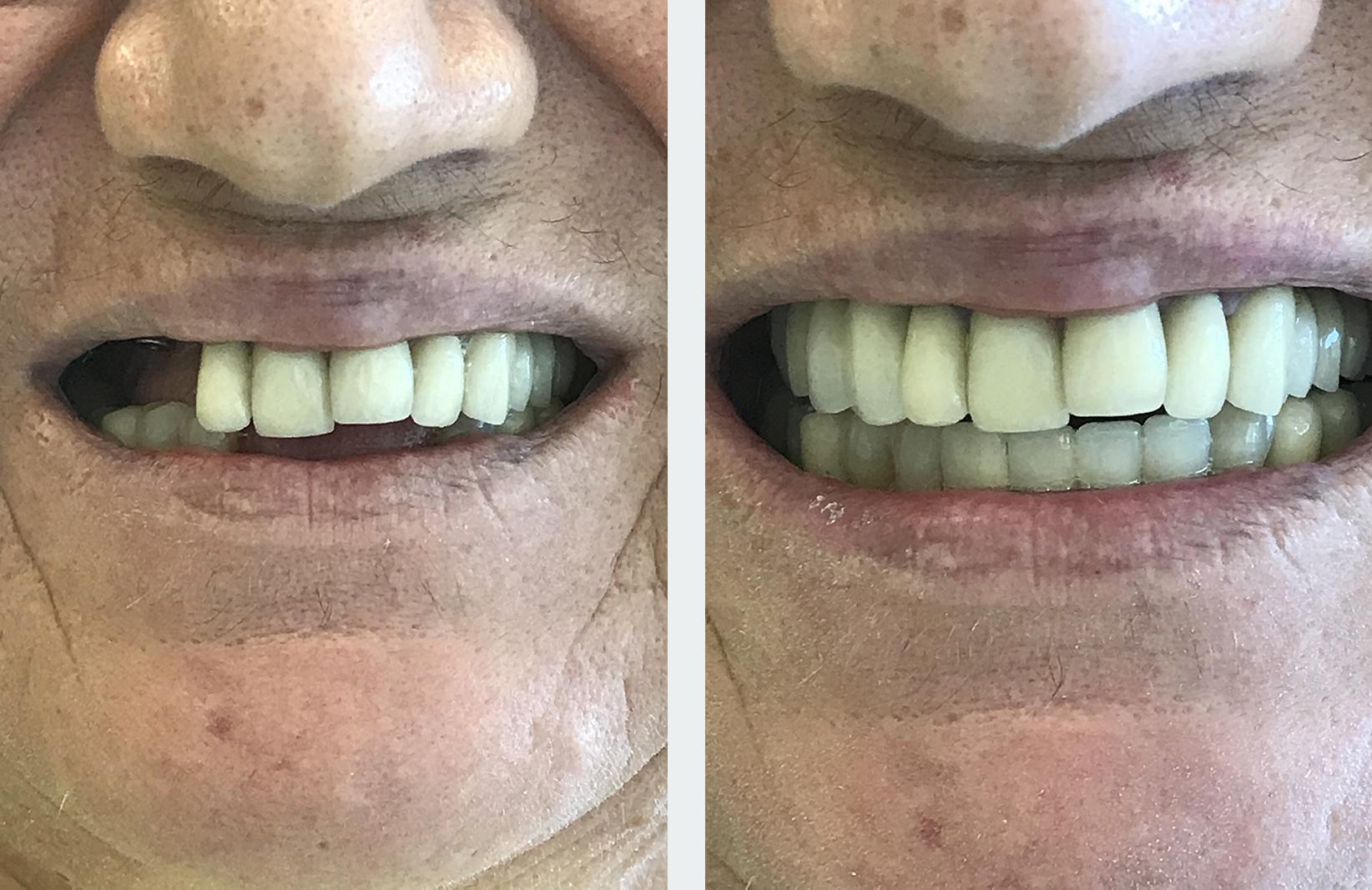 εμφυτεύματα δοντιών 10η εικόνα