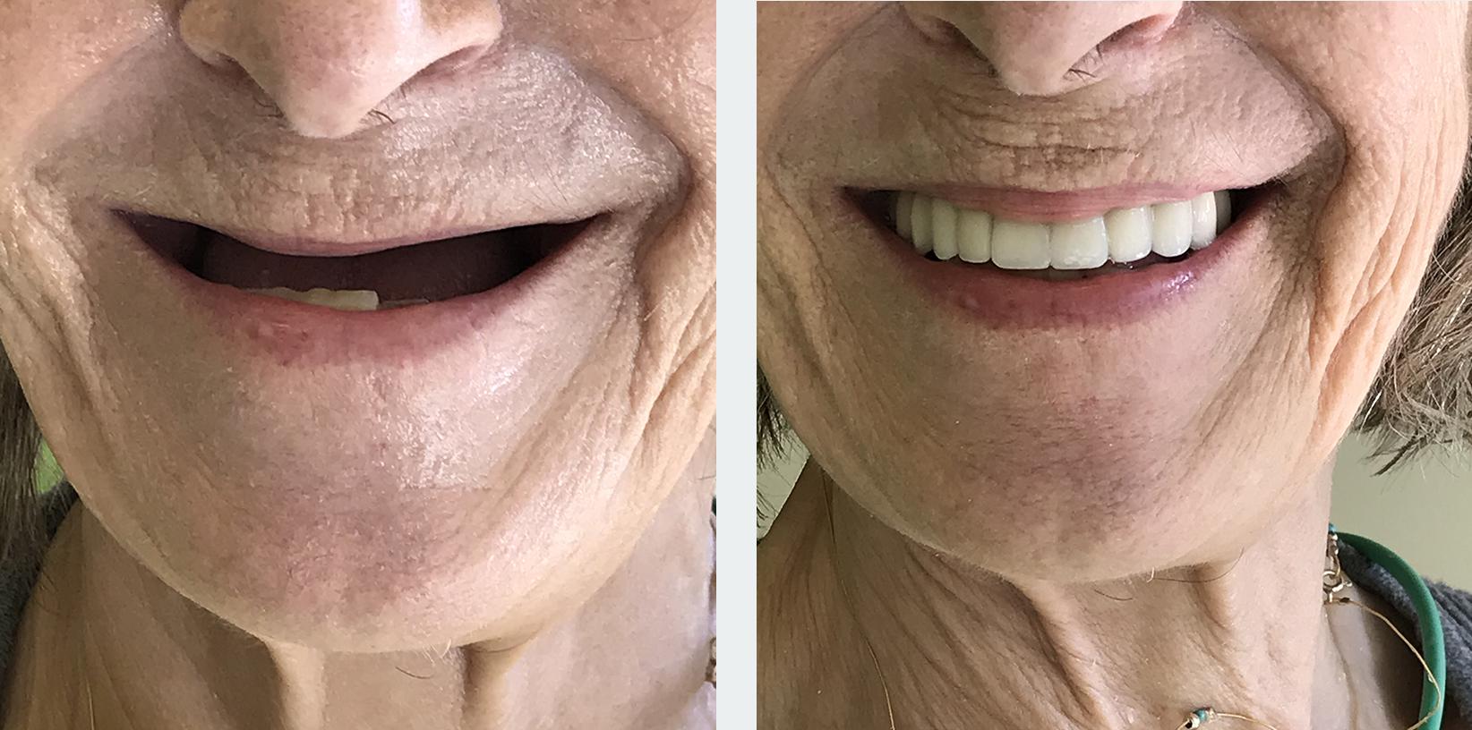 εμφυτεύματα δοντιών 11η εικόνα