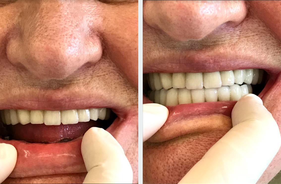 εμφυτεύματα δοντιών 3η εικόνα