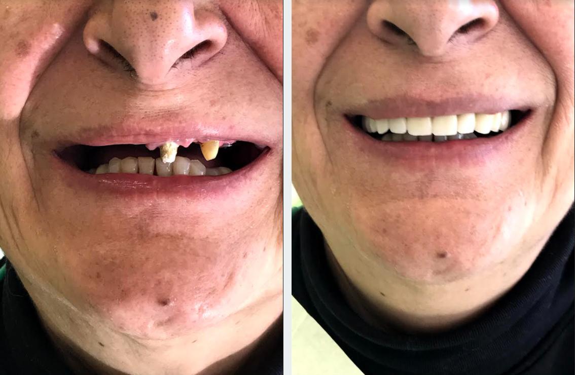 εμφυτεύματα δοντιών 4η εικόνα