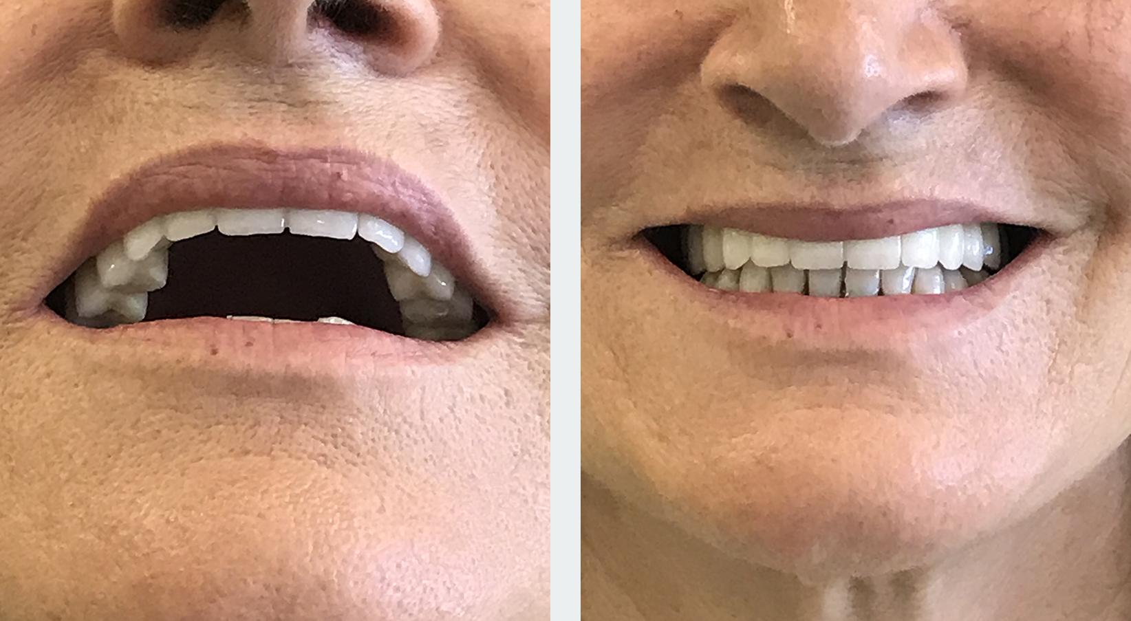 εμφυτεύματα δοντιών 7η εικόνα