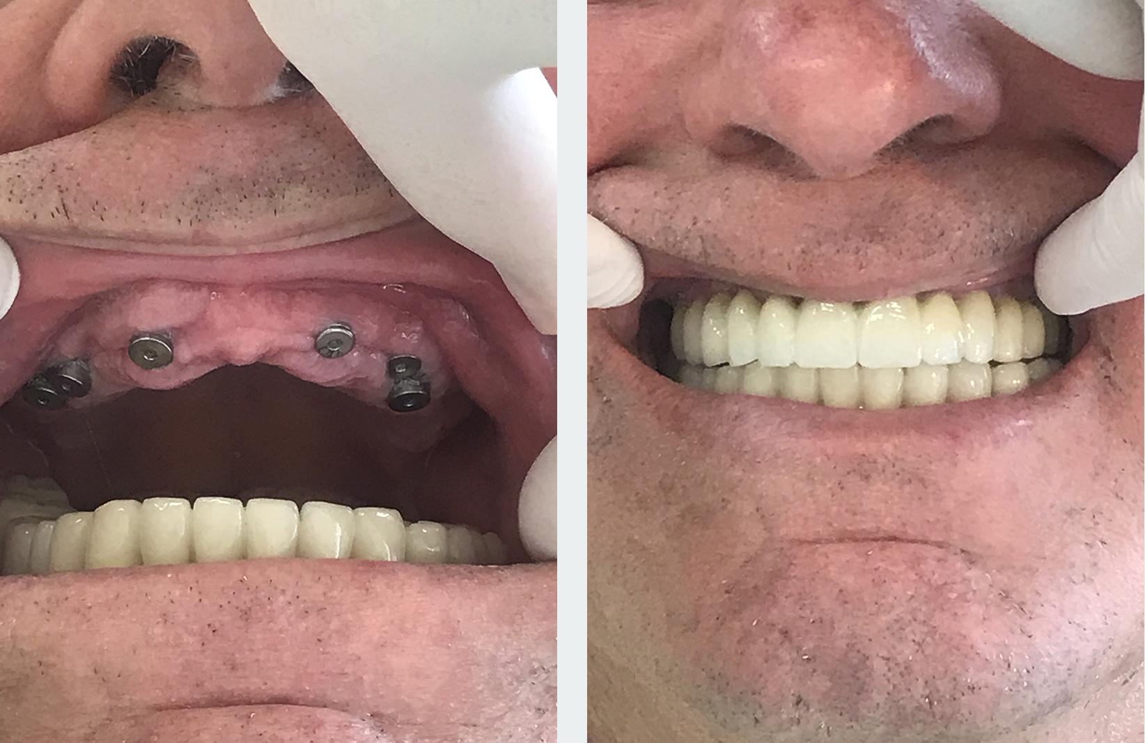 εμφυτεύματα δοντιών 8 εικόνα