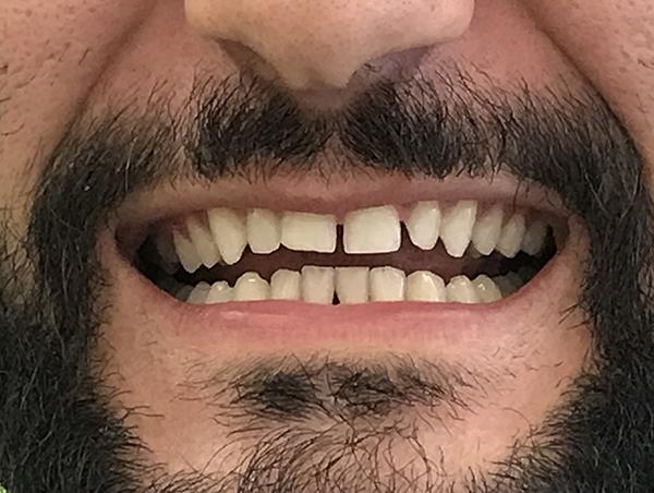 bonding δοντιών 1