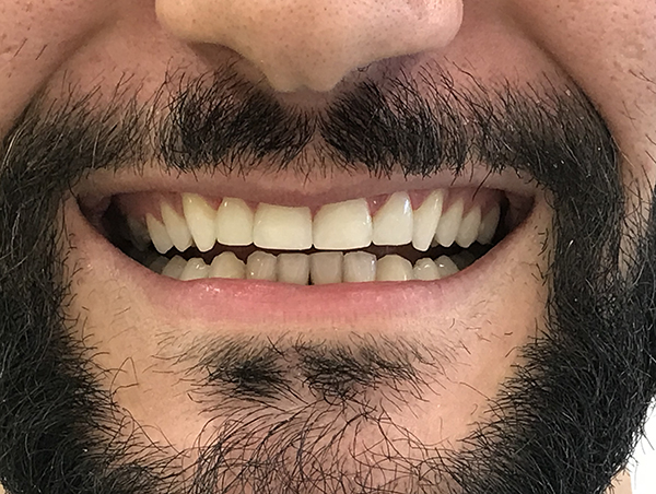 bonding δοντιών 1 μετά