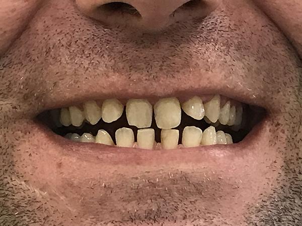 bonding δοντιών 2