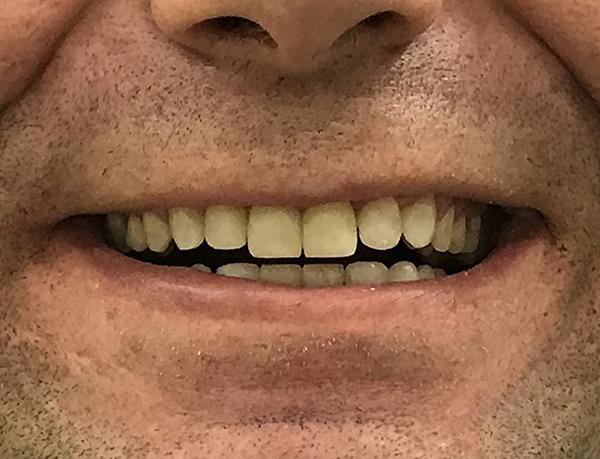 bonding δοντιών 2 μετά