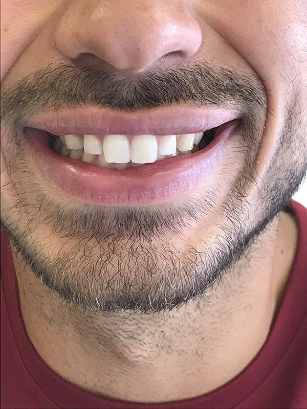 bonding δοντιών 3