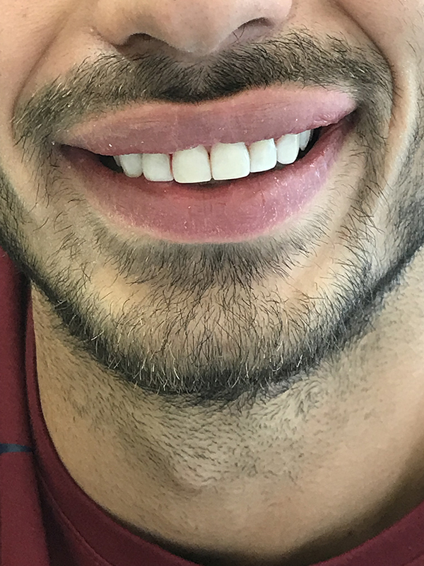 bonding δοντιών 3 μετά