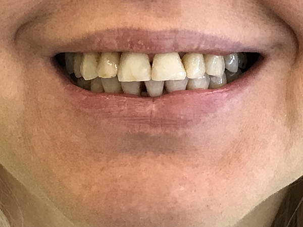 bonding δοντιών 4