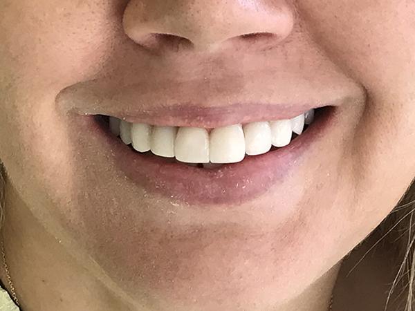 bonding δοντιών 4 μετά
