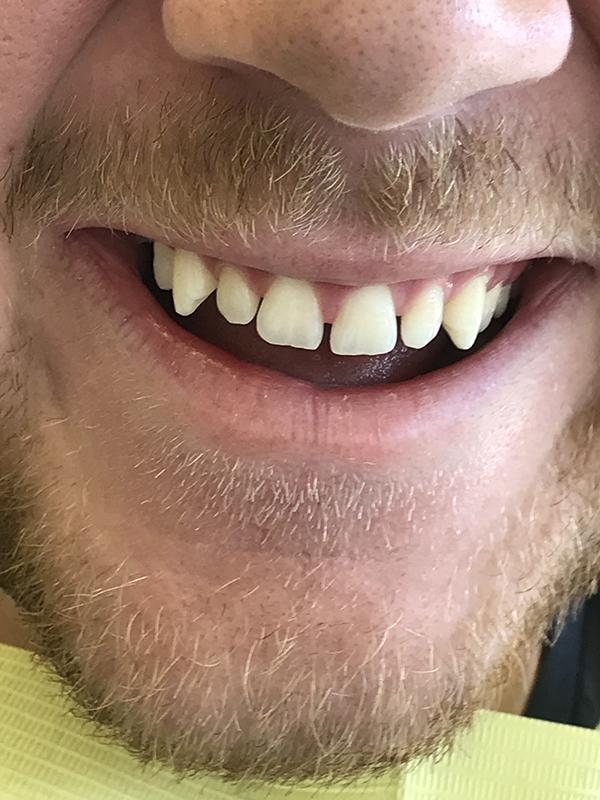 bonding δοντιών 5