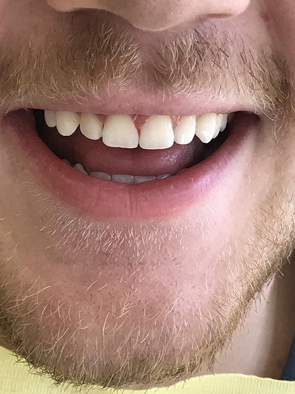 bonding δοντιών 5 μετά