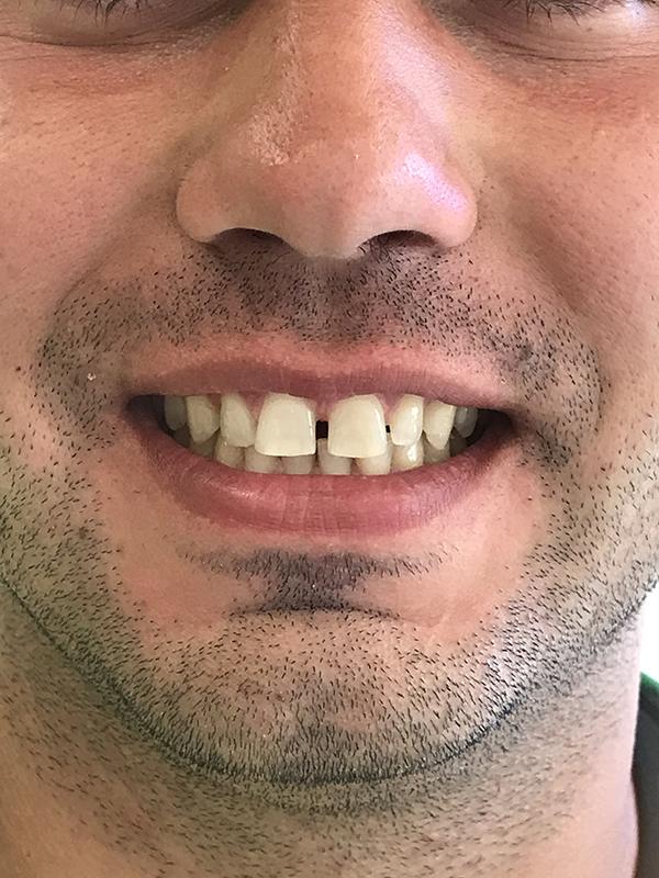 bonding δοντιών 6