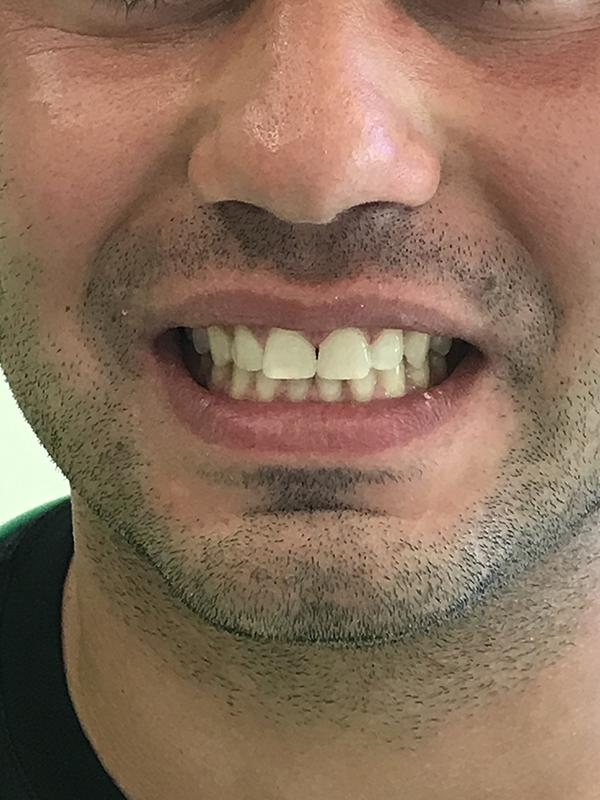 bonding δοντιών 6 μετά