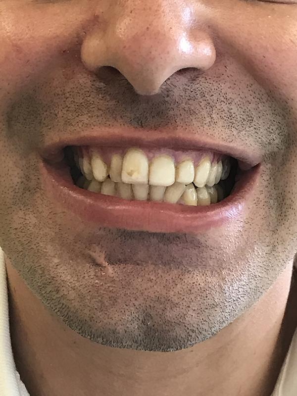 bonding δοντιών 7