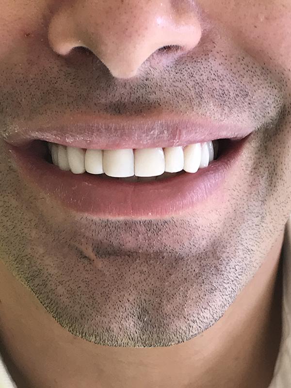 bonding δοντιών 7 μετά