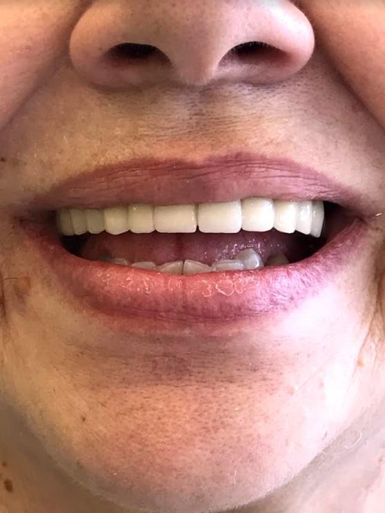 εμφυτεύματα δοντιών 1 μετά