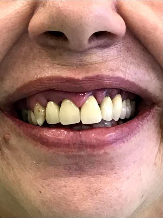 εμφυτεύματα δοντιών 1