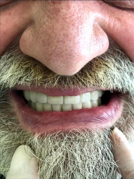 εμφυτεύματα δοντιών 2 μετά
