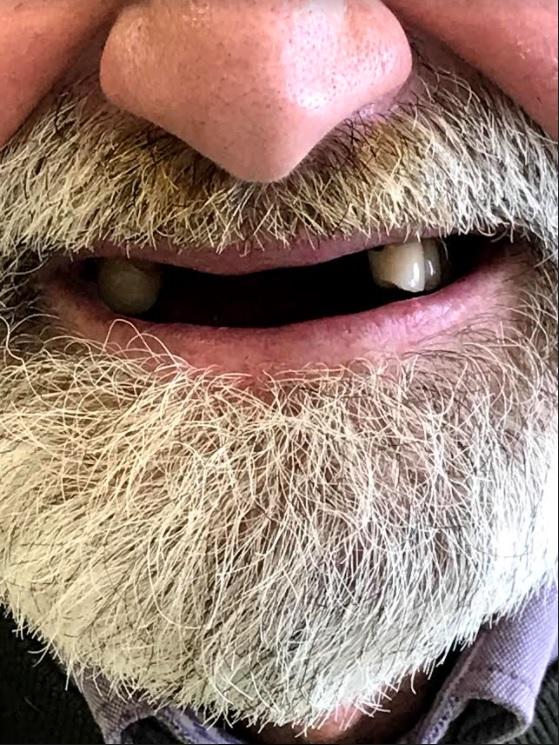 εμφυτεύματα δοντιών 2