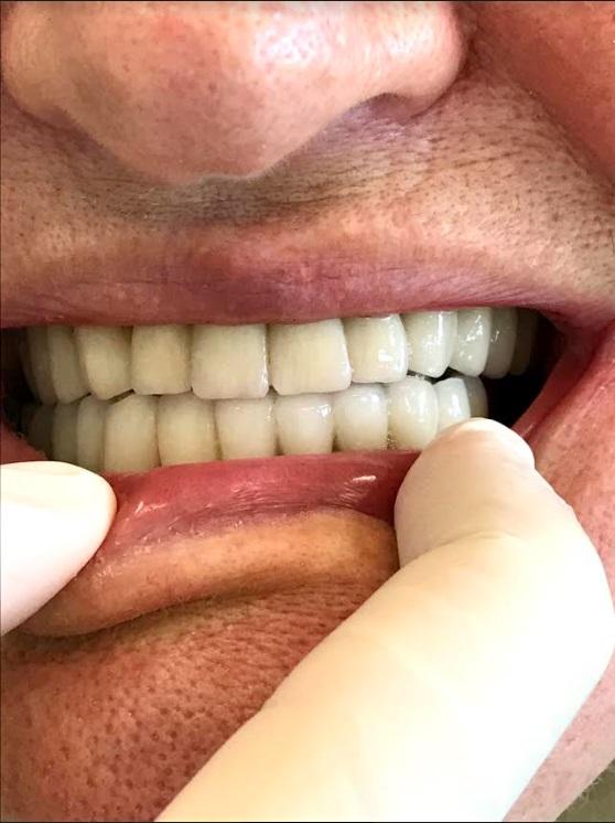 εμφυτεύματα δοντιών 3 μετά