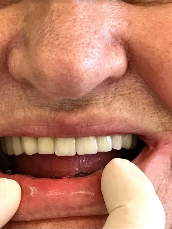 εμφυτεύματα δοντιών 3