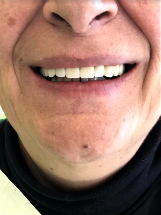 εμφυτεύματα δοντιών 4 μετά