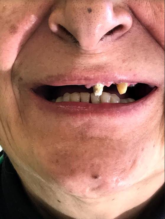 εμφυτεύματα δοντιών 4