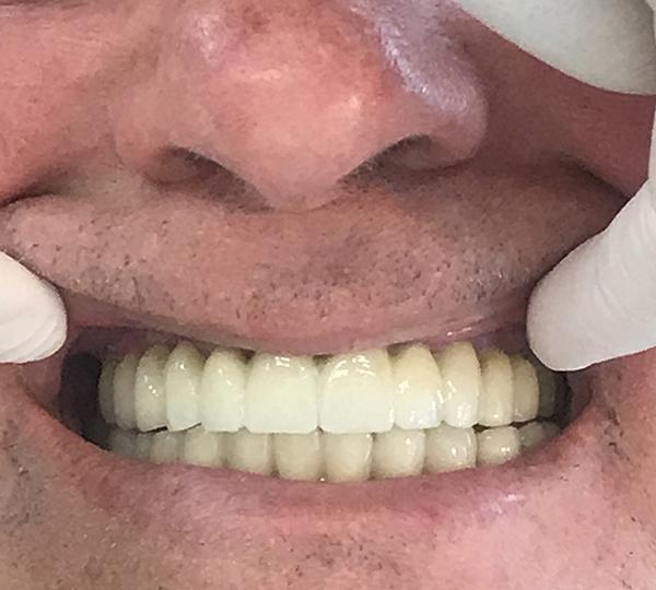 εμφυτεύματα δοντιών 5 μετά