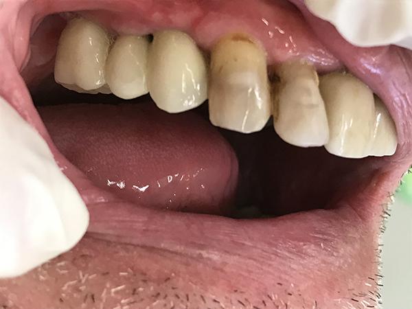 εμφυτεύματα δοντιών 6 μετά