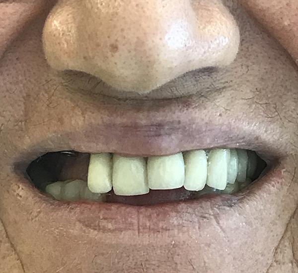 εμφυτεύματα δοντιών 7