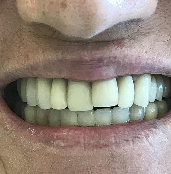 εμφυτεύματα δοντιών 7 μετά