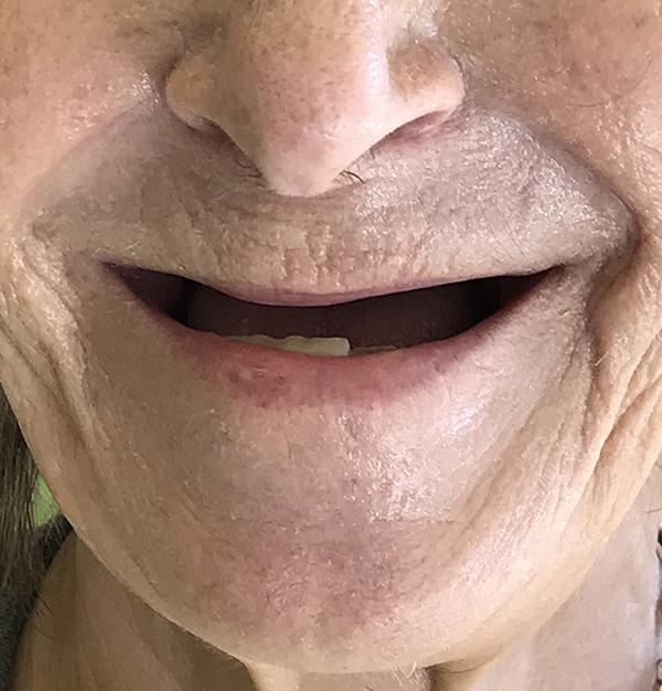 εμφυτεύματα δοντιών 8