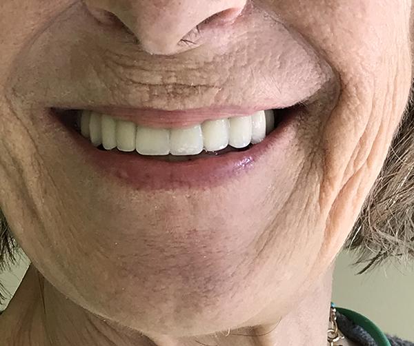 εμφυτεύματα δοντιών 8 μετά